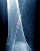 Leg artery angioplasty, X-ray