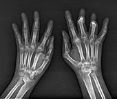 Rheumatoid arthritis of the hands, X-ray
