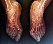 Rheumatoid arthritis of the feet, X-ray