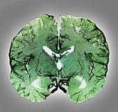 Coronal brain slice specimen