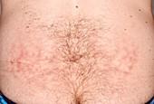 Livedo reticularis on the abdomen