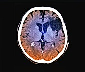Stroke brain damage, CT scan