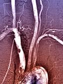 Atheroma in brachiocephalic artery, angiogram