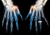 Osteoarthritis of the thumb, X-ray
