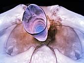 Upper trachea, 3D CT scan