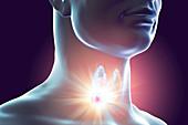 Destruction of thyroid tumour, illustration