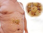 Visceral fat in the human abdomen, illustration