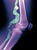 Arteriosclerosis ACDC, X-ray