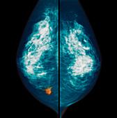 Breast cancer, mammogram