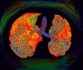 Interstitial lung disease, illustration