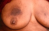 Allergic contact dermatitis on a breast