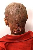 Maggots in pilonidal sinus in neck