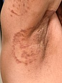 Ringworm fungal infection of the armpit