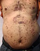 Psoriasis on the torso