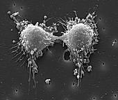 Cancer cell division, SEM