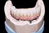 Dental cast with bar-retained denture