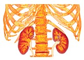 Kidneys and spine and ribs, 3D CT scan