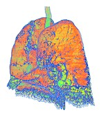Usual interstitial pneumonia, 3D CT scan