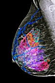Female breast, mammogram and MRI scan