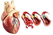Coronary angioplasty stent insertion, illustration