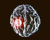Brain abscess caused by Toxoplasma gondii, illustration
