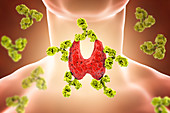 Autoimmune thyroiditis, conceptual illustration