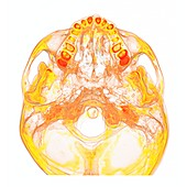 Base of the skull, 3D CT scan