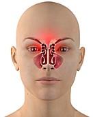 Sinus infection, illustration