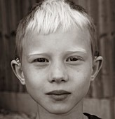 Boy fitted with cochlear implants