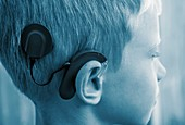 Boy fitted with cochlear implant