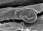 Ruptured capillary, SEM