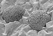 Bacterial culture from the umbilicus, SEM