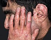 Skin in porphyria
