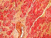 Heart tissue death, light micrograph