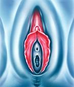 Female genital mutilation, illustration
