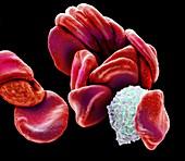 Blood cells, SEM