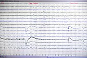 Brain waves recorded on an EEG