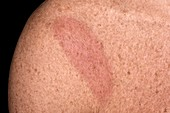 Rash in Lyme's disease