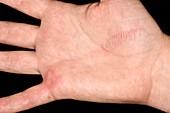 Jellyfish sting on hand