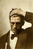 Cutaneous syphilis, 1881