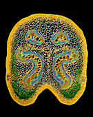 Fern stem, light micrograph