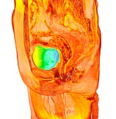 Female bladder, 3D MRI scan