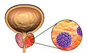 Viral etiology of prostate cancer, conceptual illustration