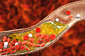 Atheromatous plaque in artery, illustration