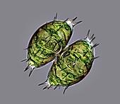 Staurastrum algae, light micrograph