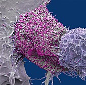 HIV infected cell, SEM