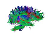 Brain fibres side view right, DTI scan