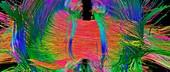 Brain fibres front view, DTI scan