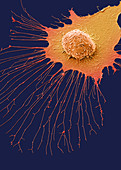 Migrating breast cancer cell, SEM