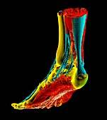 Human foot and Achilles tendon, 3D CT scan